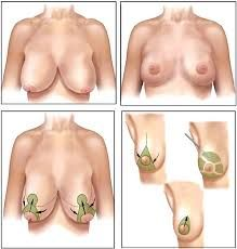 New Technique in Breast Reduction Surgery