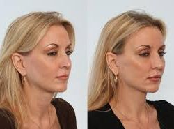 Dr. Adam Stein Raleigh, NC Answers Your NeckLift FAQs